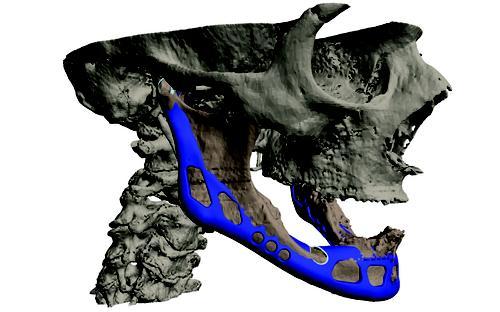 3d printed jaws