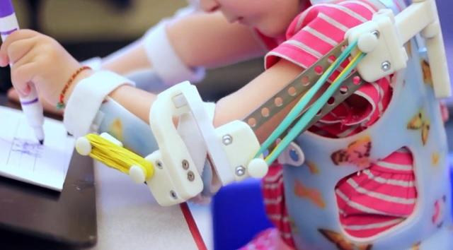Emma Lavelle's Exoskeleton arm
