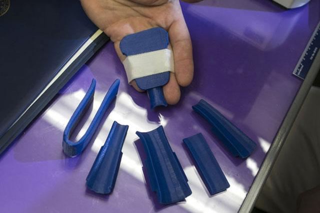 printed splint parts
