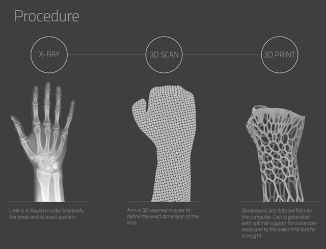 Cortex Cast Procedure 3D Printed