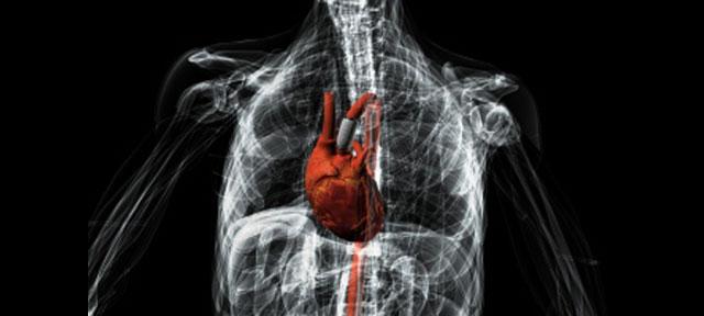 3D Printed Electronics Heart Disease