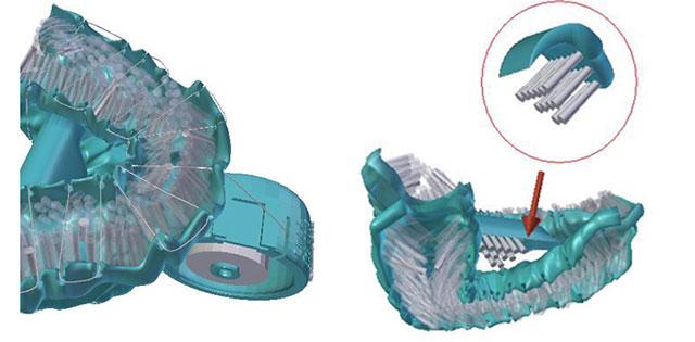 Придумана инновационная зубная щетка, способная почистить зубы за 6 секунд