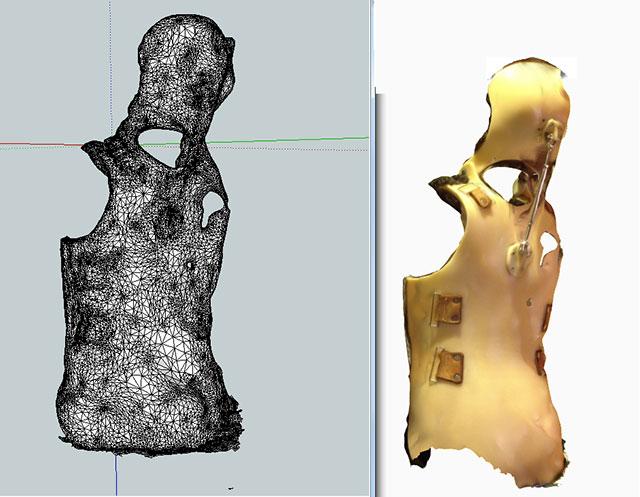 orthotic body suit model test