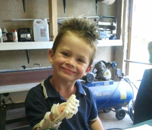 Liam 3D Printed Prosthetic hand