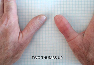 Final 3D Printed Thumb