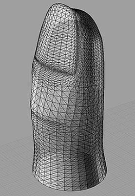 Standard prosthetic design