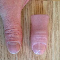 comparison 3D Printed Thumb