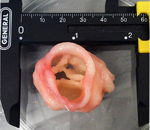 Creating Valve Tissue Using 3D Bioprinting