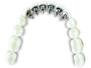 Riton Biomaterials eBrace 3D Printing Dental