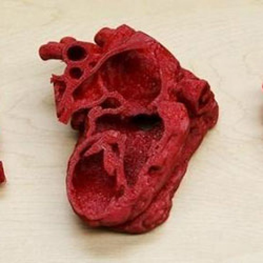 3d printing Childs heart