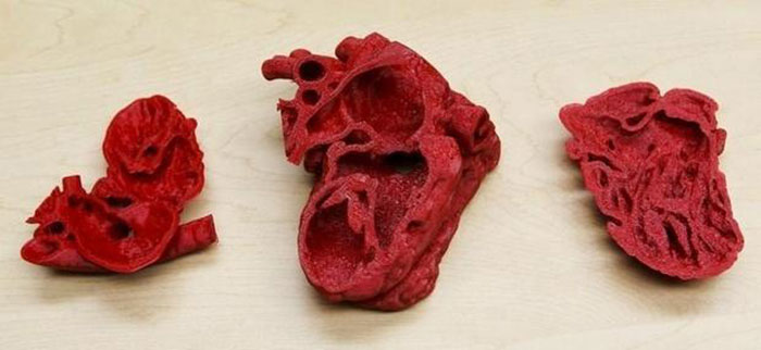 3d printing Childs heart 3d printed