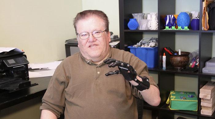 Beast 3D Printing Prosthetics