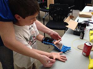 3d printing prosthetic hands keegen