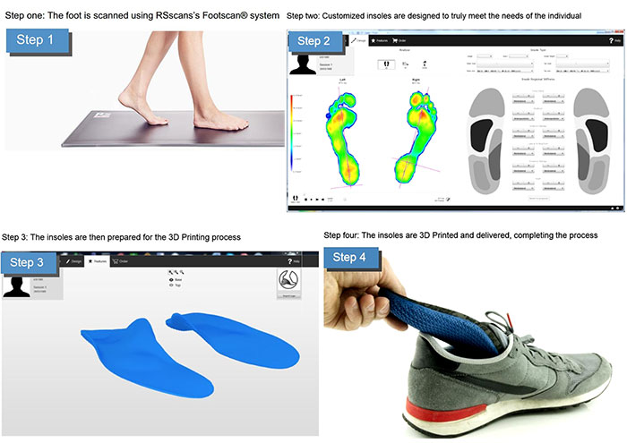 Materialise 3d printing insoles