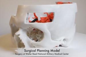 NIH 3D Print Exchange 3D Printable Medical Models4