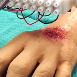 3D scanning soldier's burn for 3D printed skin