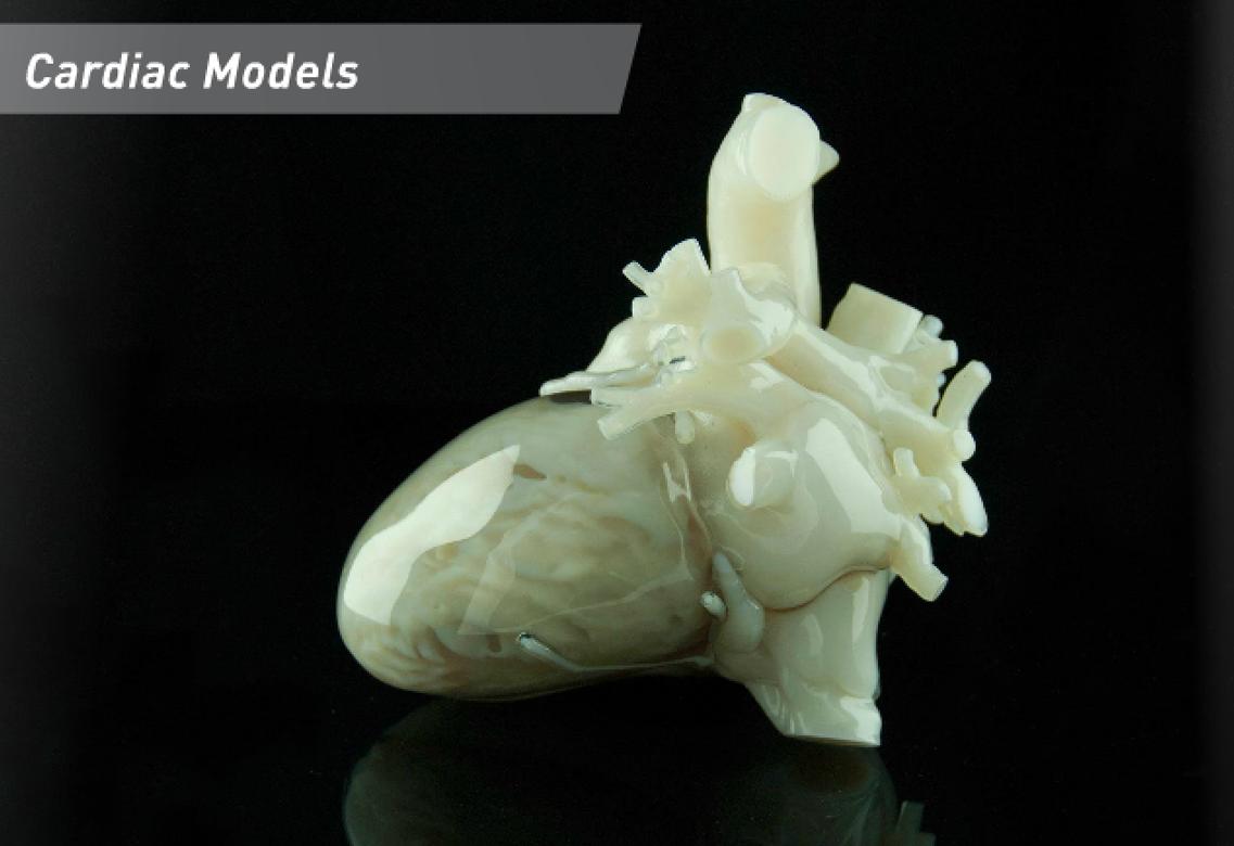 3d printed cardiac model