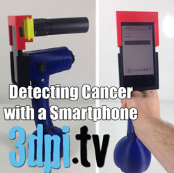 3d printing cancer detection smartphone