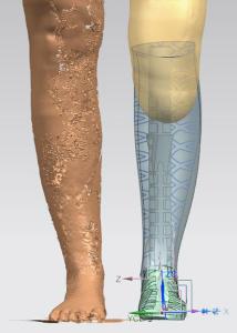 Natasha Hope Simpson scan for 3D printed leg