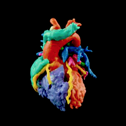 feature materialize 3d printed heart 3dpi
