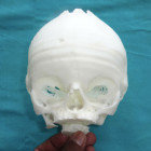 Widespread Use of 3D Printed Models Keeps Lowering the Barriers to Complex Surgeries