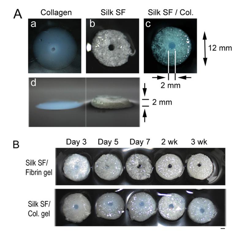brain tissue comparsion