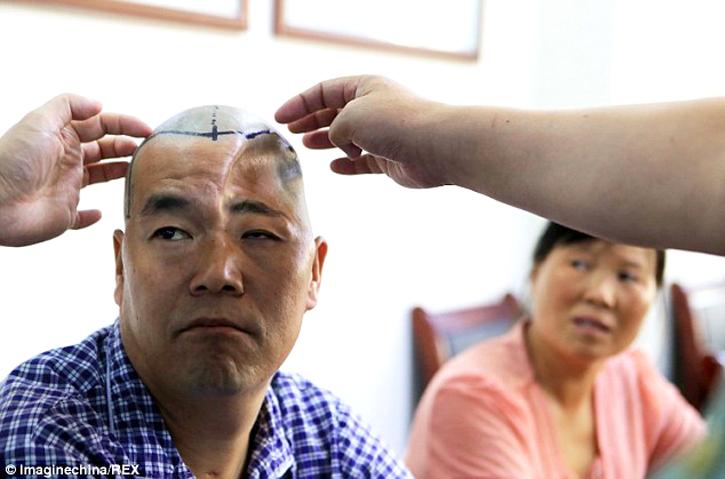 chinese farmer receives 3D printed titanium mesh skull implant