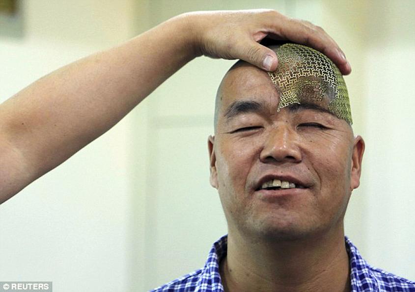 hu receives 3D printed titanium mesh implant