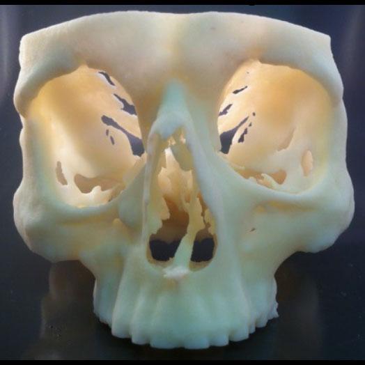 medical 3d printing replica3d