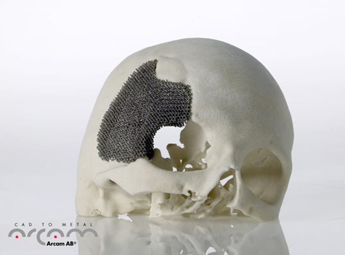 arcam acquires disanto medical 3D printing service bureau