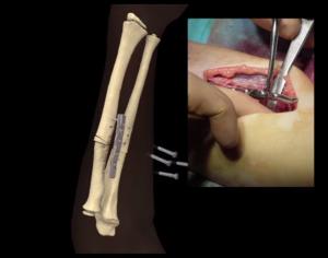 3d printed bone implant