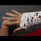 Studio Fathom Puts a Social Media Spin on the 3D Printed Cast with the #CAST