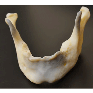 mandible medical 3d printing proof x