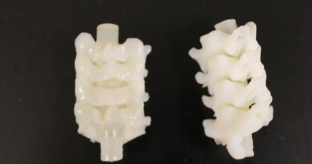 spine medical 3d printing proof x