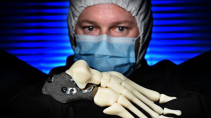 3D printed heel bone for len chandler