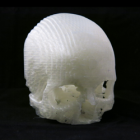3D Printing Helps Husband Seek Treatment for Wife's Brain Tumor