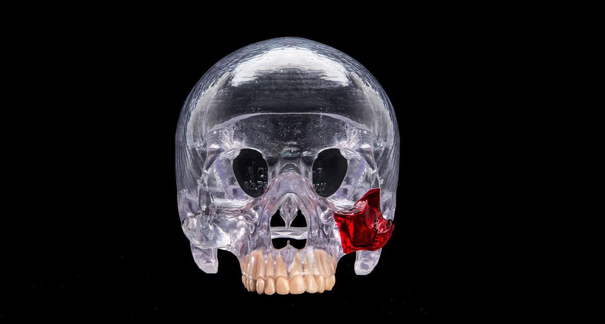 Glass skull 3d printing