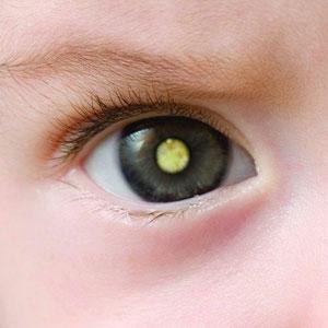 baby 3d printing eye prosthesis
