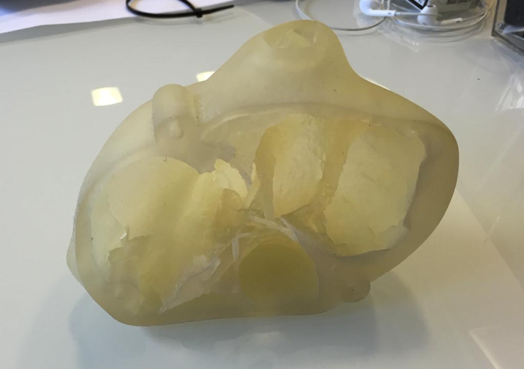 3d printed heart model