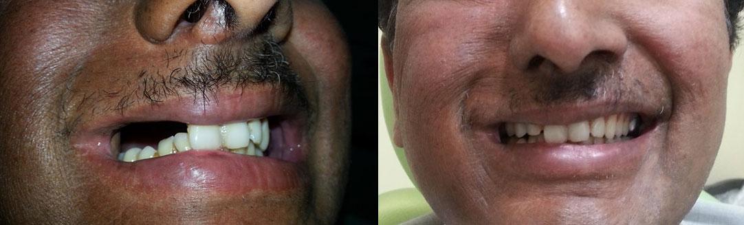 teeth implant osteo3d 3d printing bangladesh