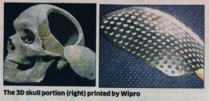 wipro 3d printing skull plate