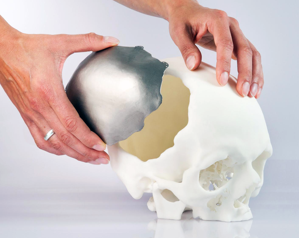3D printed cranial implant approved by EU