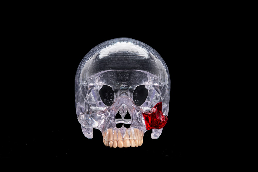 3D printed skull from prodways