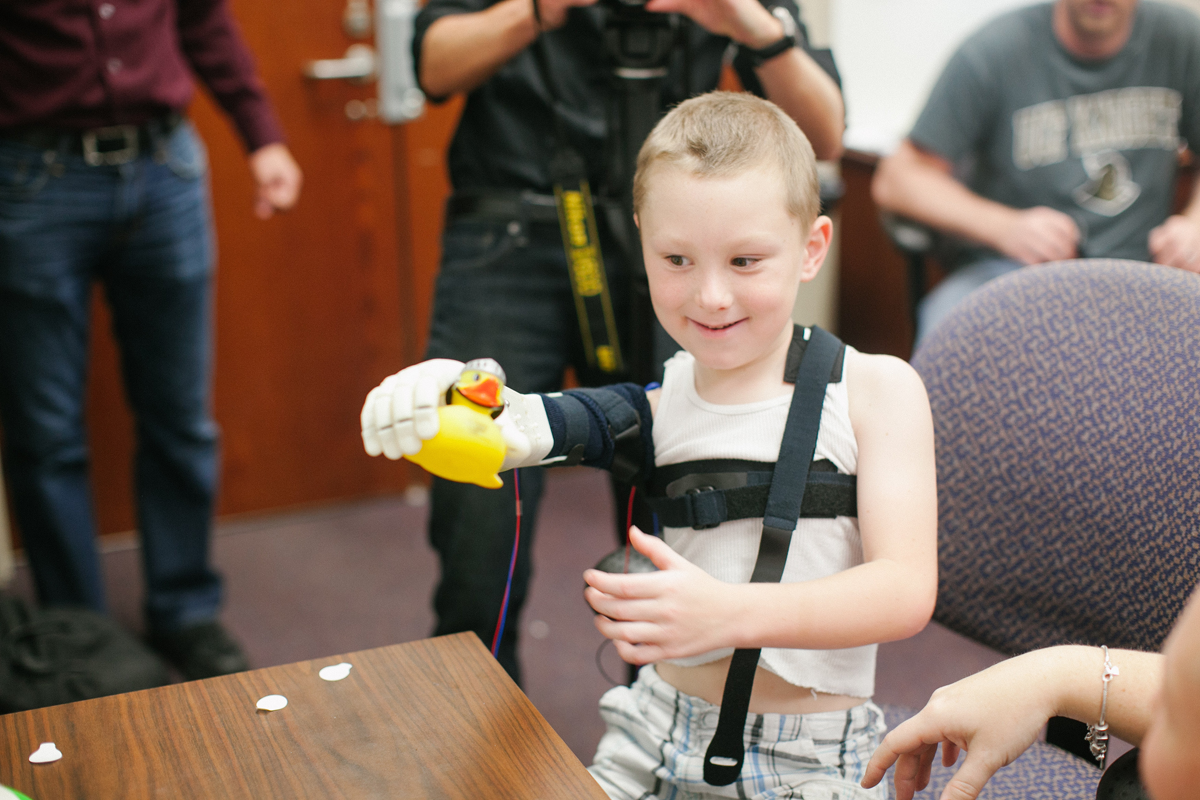 alex pring 3D printed limb from limbitless solutions and e-nable
