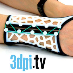 3d printing custom splint