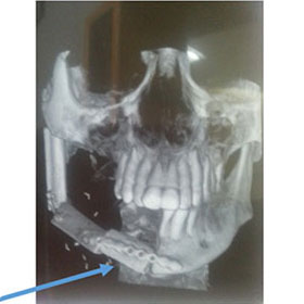 3d printing jaw model
