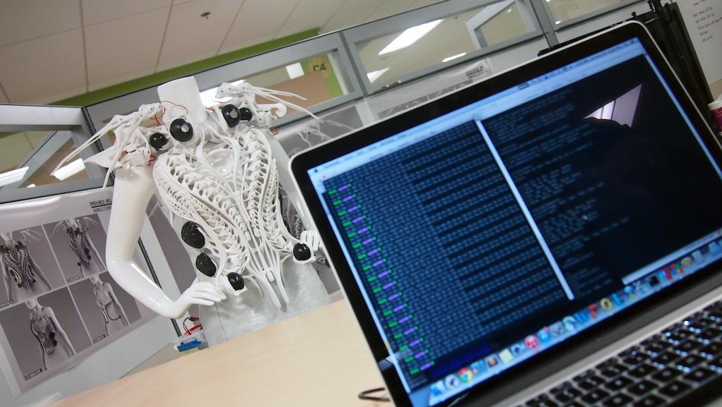 Anouk Wipprecht 3D Printed Mechatronic Spider Dress