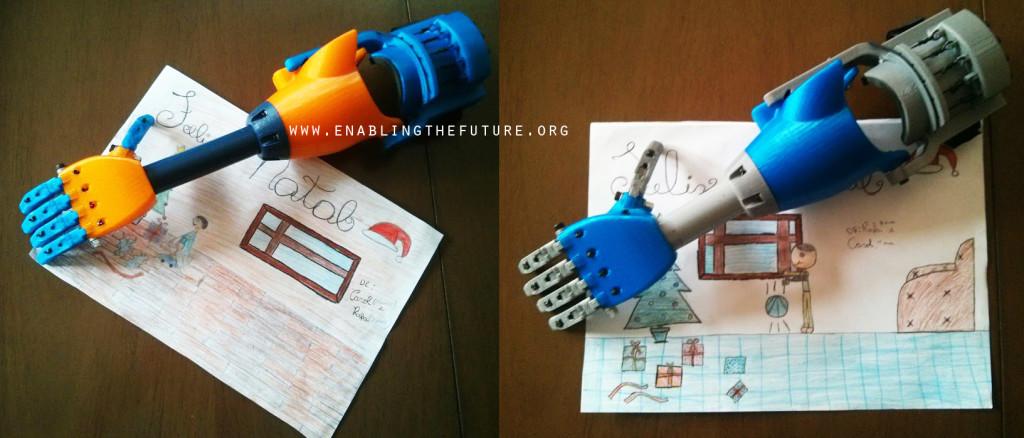 enabling the future 3d printing prosthetics
