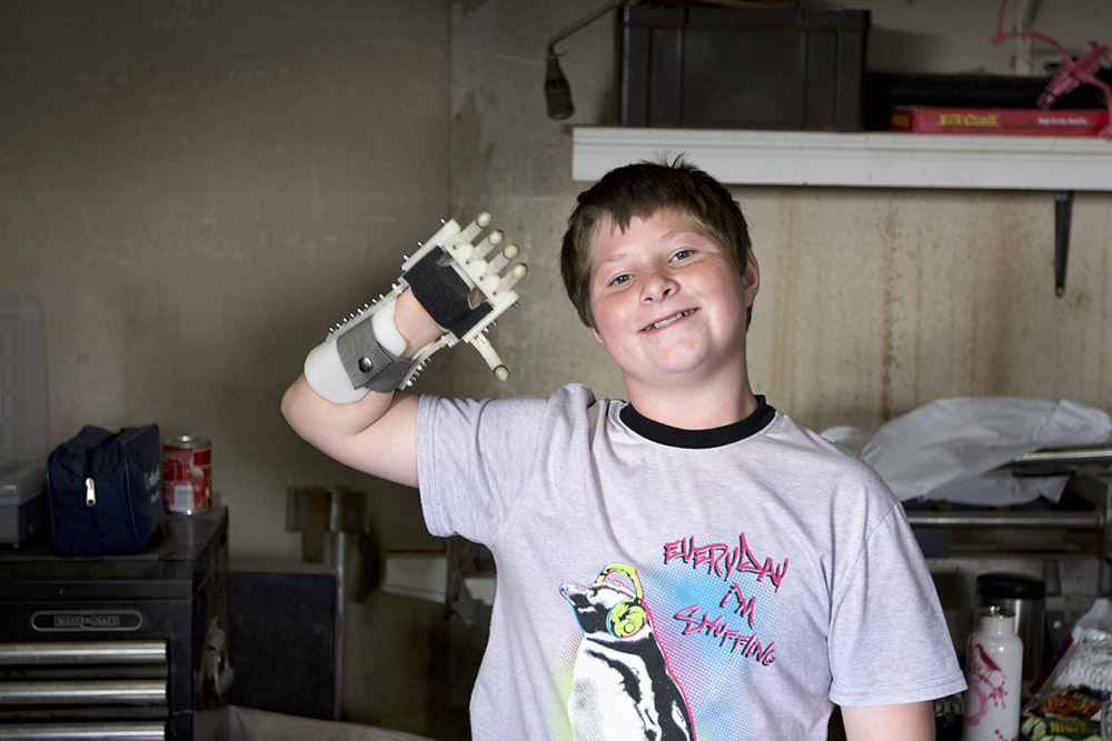 3d printed prosthetic hand kid