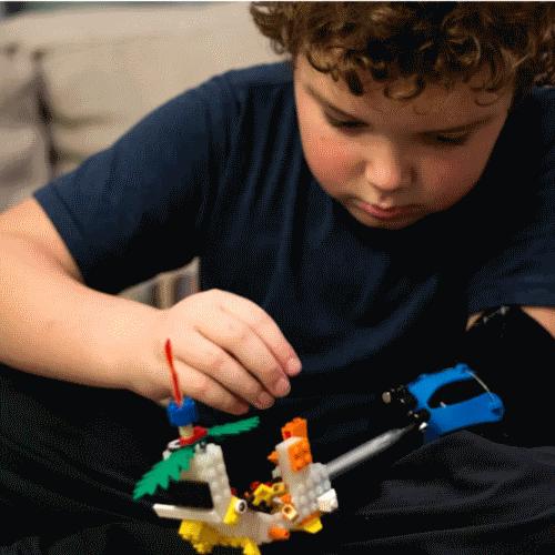 kidsmob 3d printing prosthetic